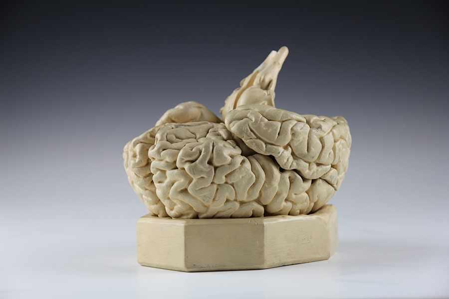 """Lot 52 - Medizin - - Modell eines menschlichen Gehirns. Deutschland um 1900, bezeichnet """"P. Mazotti,"""