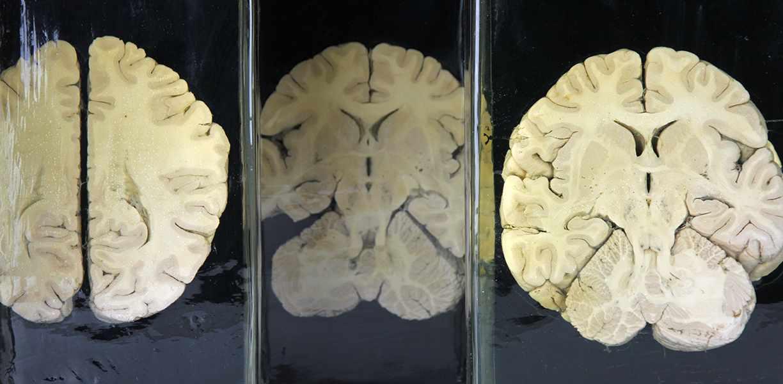 Lot 51 - Medizin - - Horizontalschnitte des menschlichen Gehirns. Leipzig um 1920, Koehler & Volkmar,