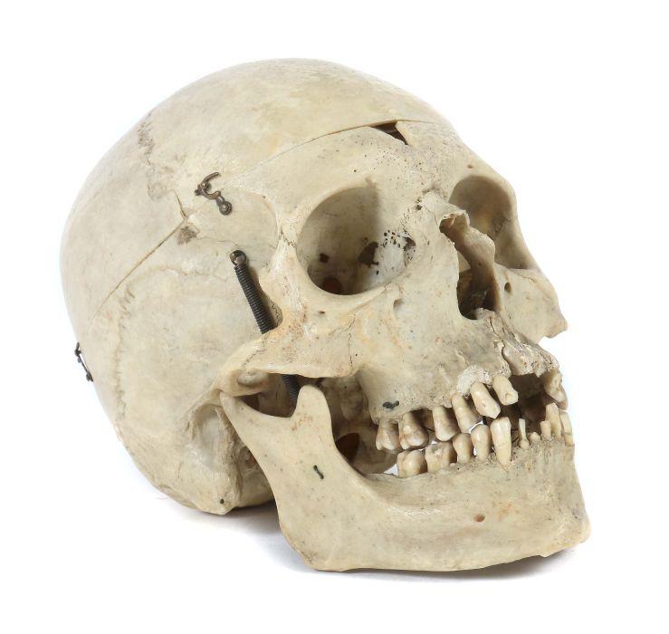 Ungewöhnlich Schädel Kennzeichnung Galerie - Menschliche Anatomie ...